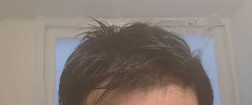 scalp スカルプ 育毛剤 薄毛対策 ハゲ 育毛 第三世代